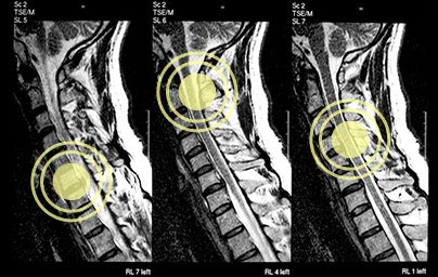 spine-mri-disc-herniation-and-spinal-cord-compression